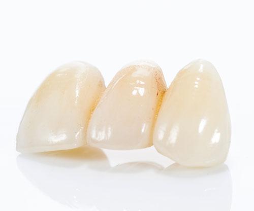 dental esse bologna